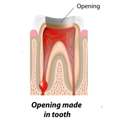 http://ScarsdaleEndo.com | Root Canal Therapy Graphic 2