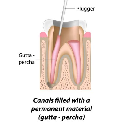 http://ScarsdaleEndo.com | Root Canal Therapy Graphic 4